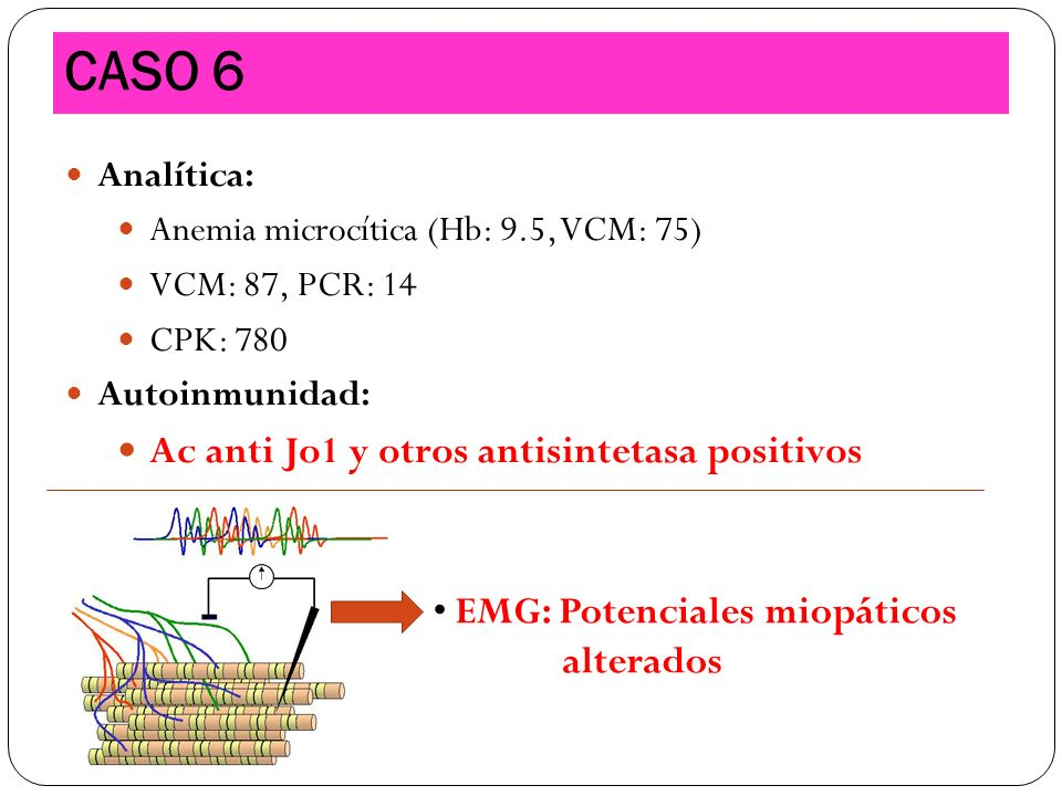 CASO 6 Ac anti Jo1 y otros antisintetasa positivos alterados