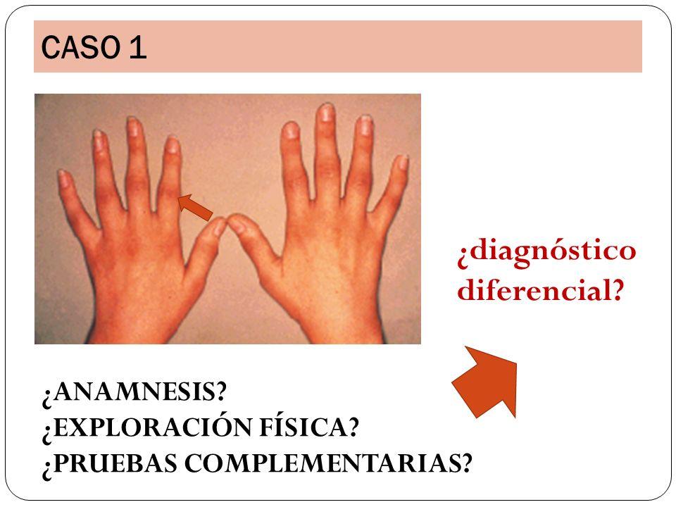 CASO 1 ¿diagnóstico diferencial ¿ANAMNESIS ¿EXPLORACIÓN FÍSICA