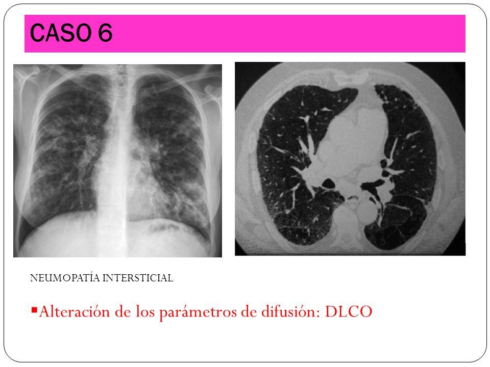 CASO 6 Alteración de los parámetros de difusión: DLCO
