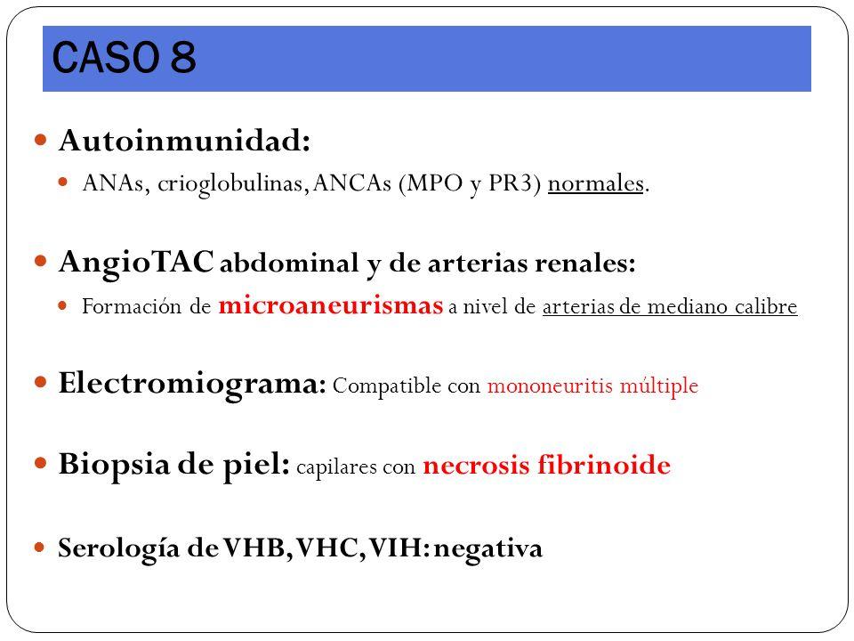CASO 8 Autoinmunidad: AngioTAC abdominal y de arterias renales: