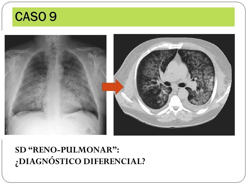 CASO 9 SD RENO-PULMONAR : ¿DIAGNÓSTICO DIFERENCIAL