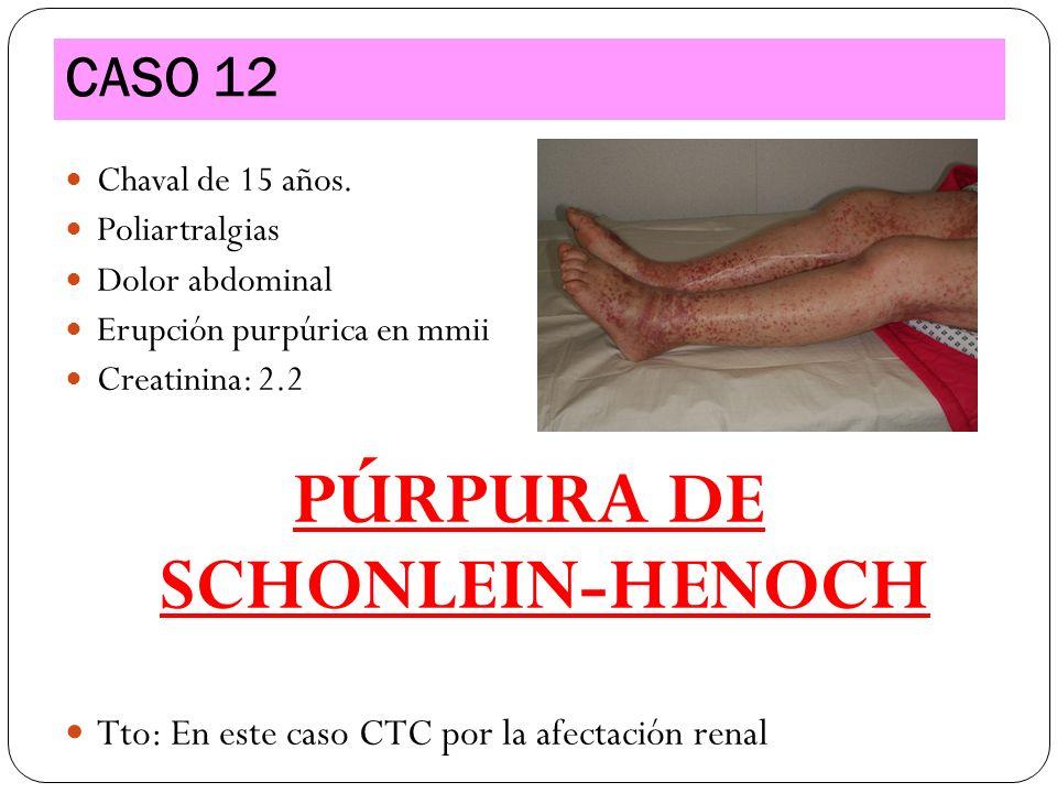 PÚRPURA DE SCHONLEIN-HENOCH