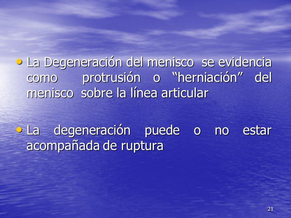La Degeneración del menisco se evidencia como protrusión o herniación del menisco sobre la línea articular
