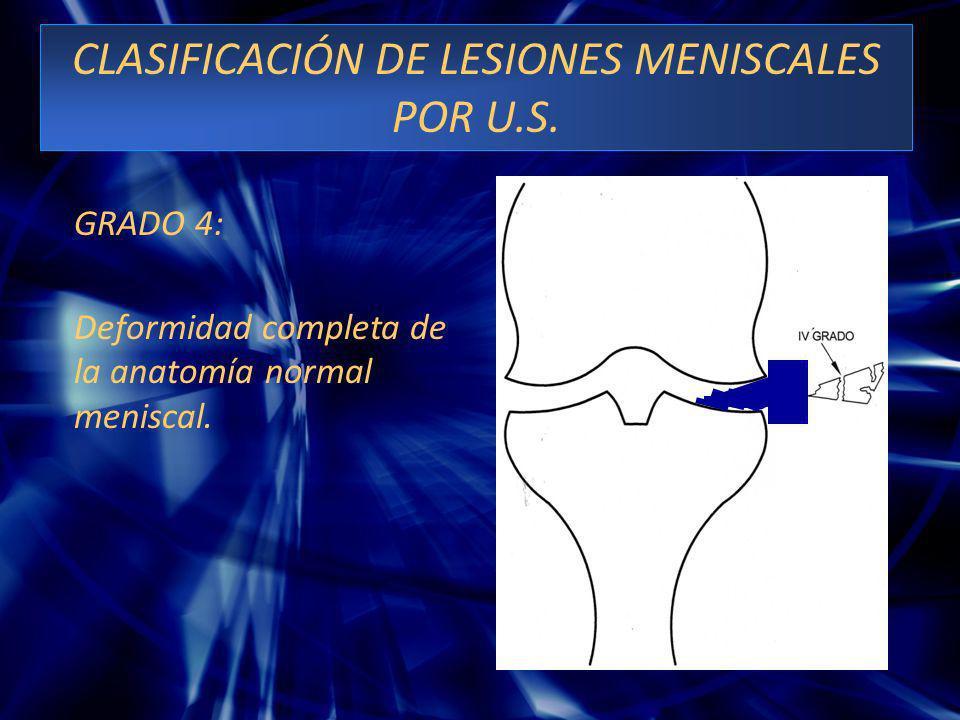 CLASIFICACIÓN DE LESIONES MENISCALES POR U.S.