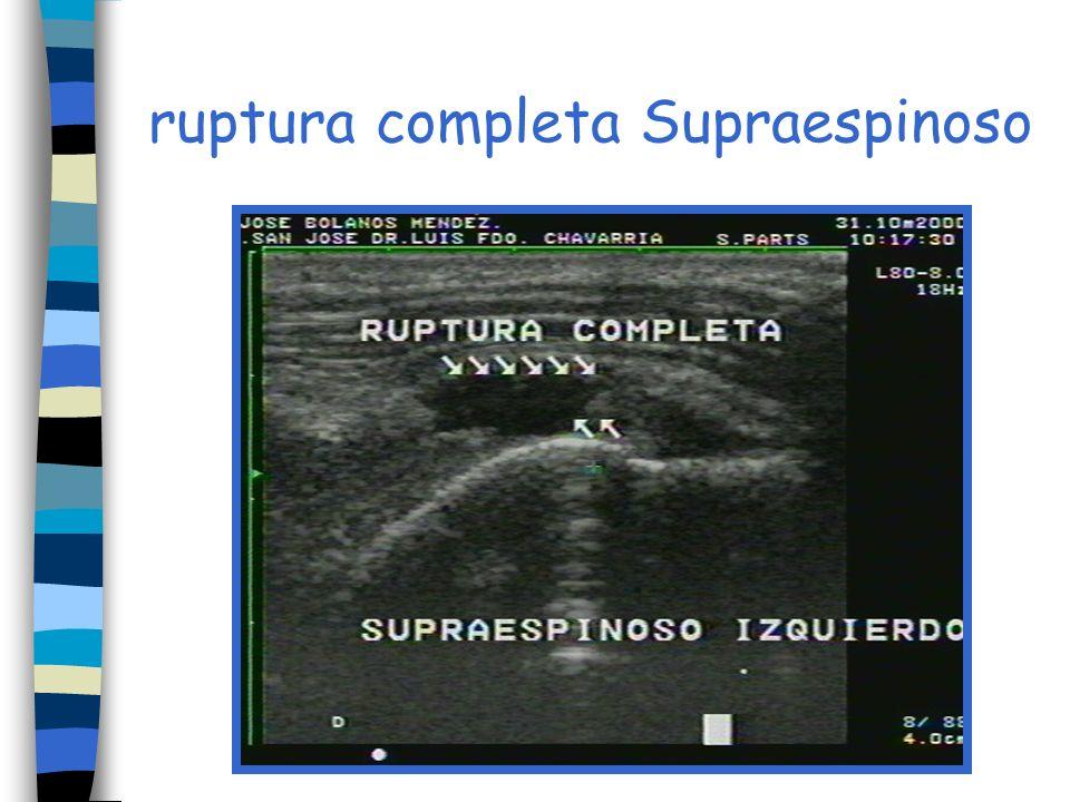 ruptura completa Supraespinoso