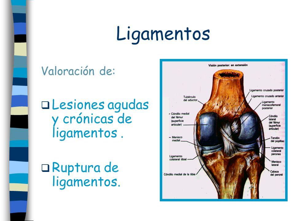 Ligamentos Lesiones agudas y crónicas de ligamentos .