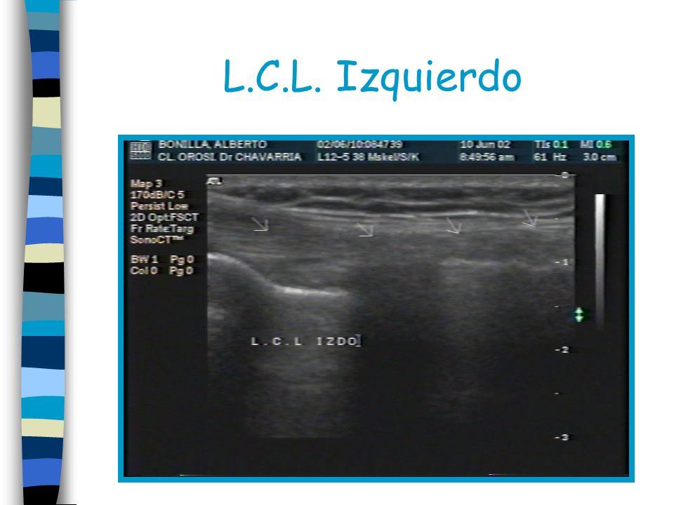 L.C.L. Izquierdo