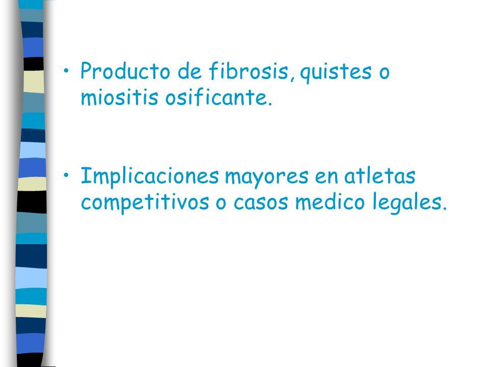 Producto de fibrosis, quistes o miositis osificante.