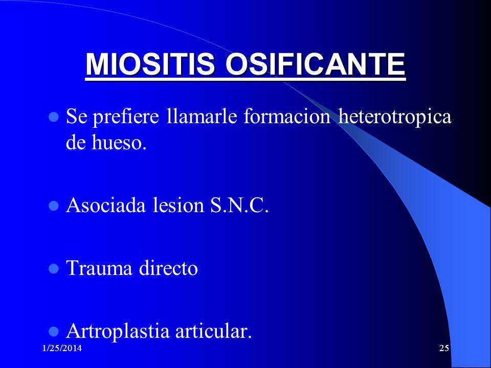 MIOSITIS OSIFICANTE Se prefiere llamarle formacion heterotropica de hueso. Asociada lesion S.N.C. Trauma directo.
