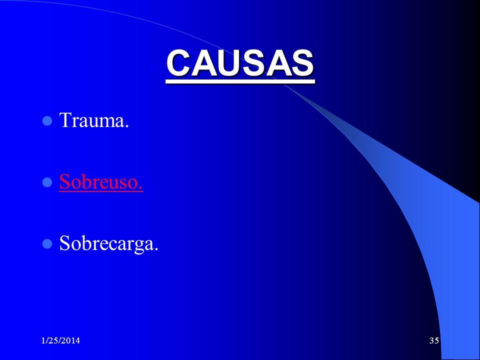CAUSAS Trauma. Sobreuso. Sobrecarga. 3/24/2017