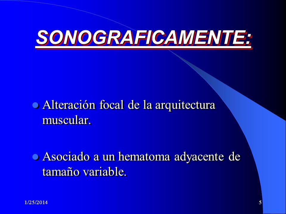 SONOGRAFICAMENTE: Alteración focal de la arquitectura muscular.