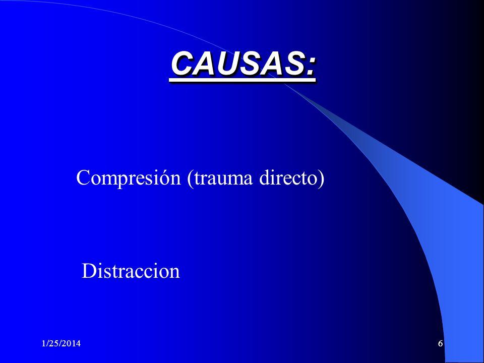 CAUSAS: Compresión (trauma directo) Distraccion 3/24/2017