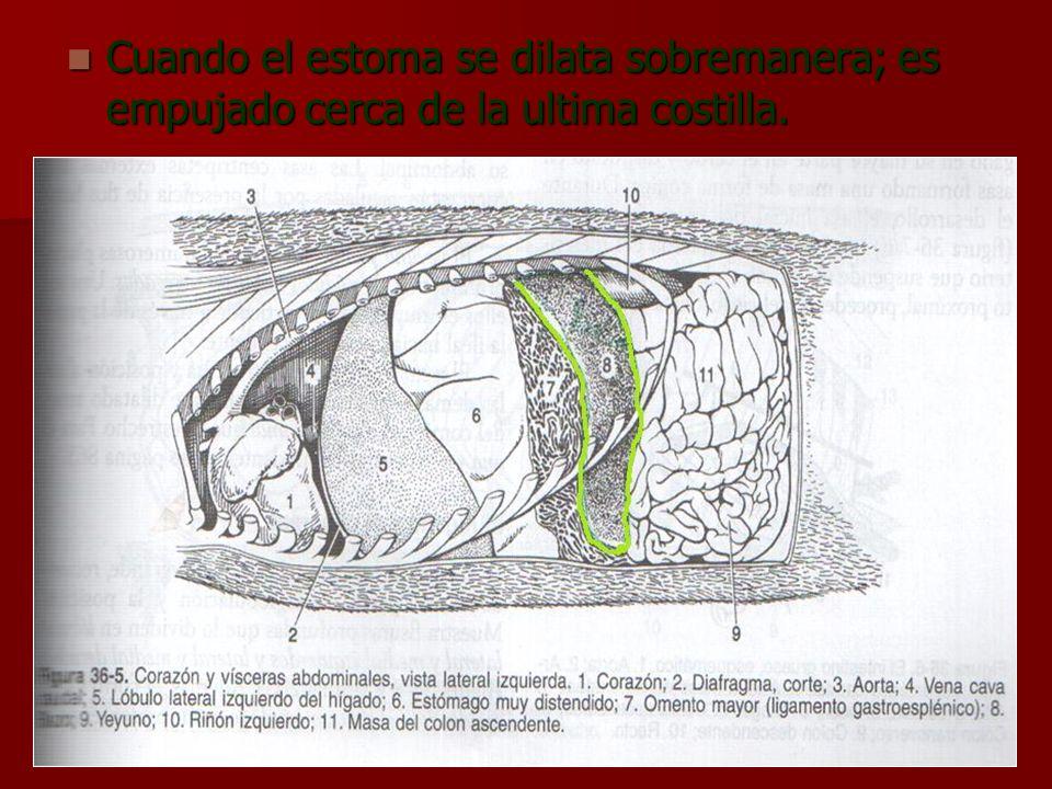 Cuando el estoma se dilata sobremanera; es empujado cerca de la ultima costilla.