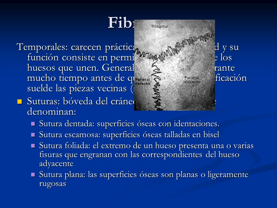 Fibrosas