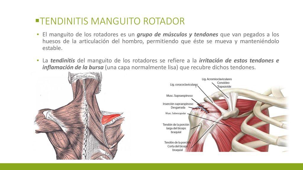 Hermosa Imagen Manguito Rotador Anatomía Motivo - Imágenes de ...