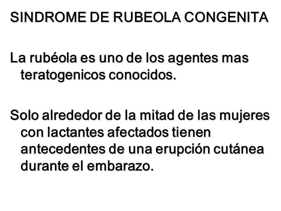 SINDROME DE RUBEOLA CONGENITA