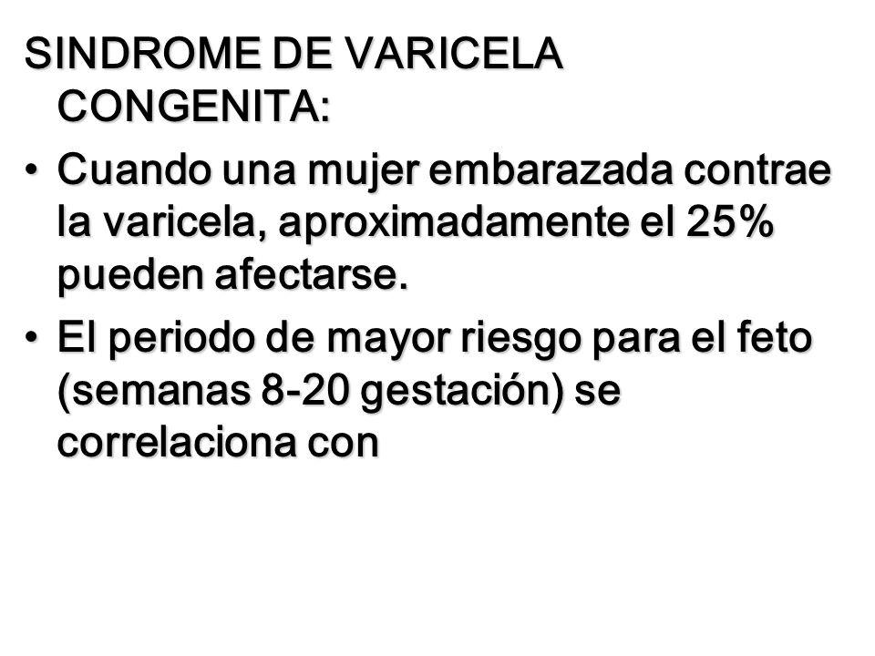 SINDROME DE VARICELA CONGENITA: