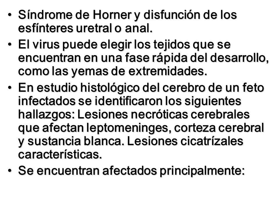 Síndrome de Horner y disfunción de los esfínteres uretral o anal.