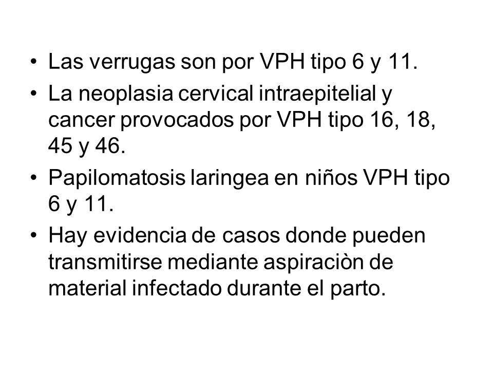 Las verrugas son por VPH tipo 6 y 11.