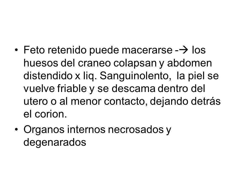 Feto retenido puede macerarse - los huesos del craneo colapsan y abdomen distendido x liq. Sanguinolento, la piel se vuelve friable y se descama dentro del utero o al menor contacto, dejando detrás el corion.
