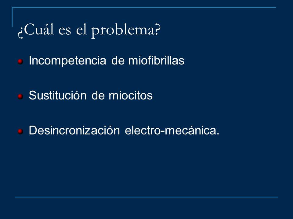 ¿Cuál es el problema Incompetencia de miofibrillas
