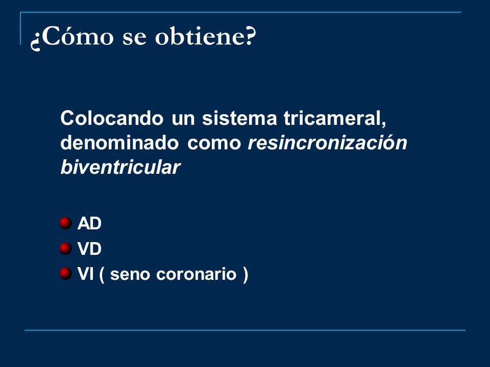 ¿Cómo se obtiene Colocando un sistema tricameral, denominado como resincronización biventricular. AD.