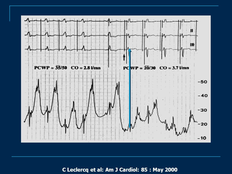 C Leclercq et al: Am J Cardiol: 85 : May 2000