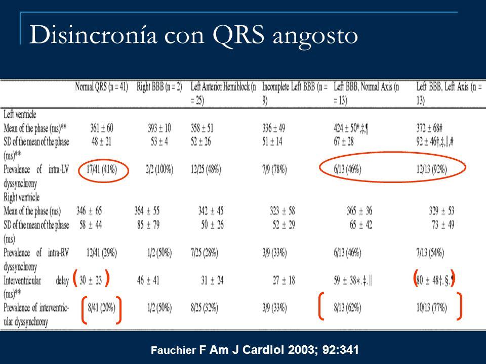 Disincronía con QRS angosto