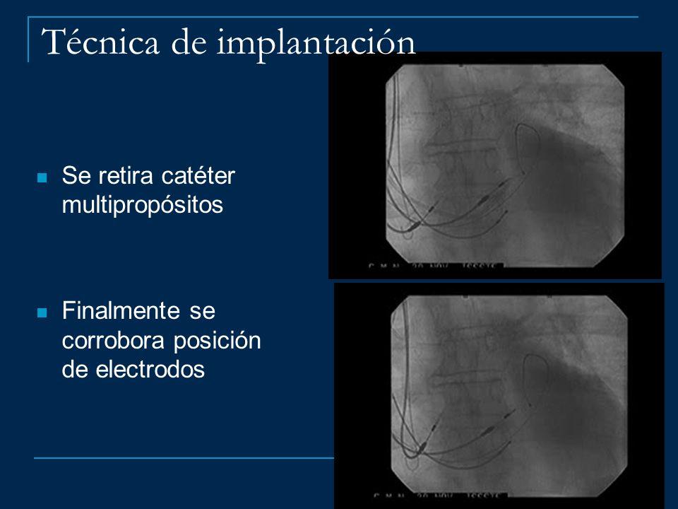 Técnica de implantación