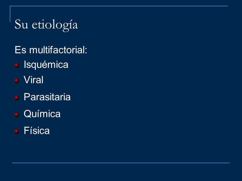 Su etiología Es multifactorial: Isquémica Viral Parasitaria Química