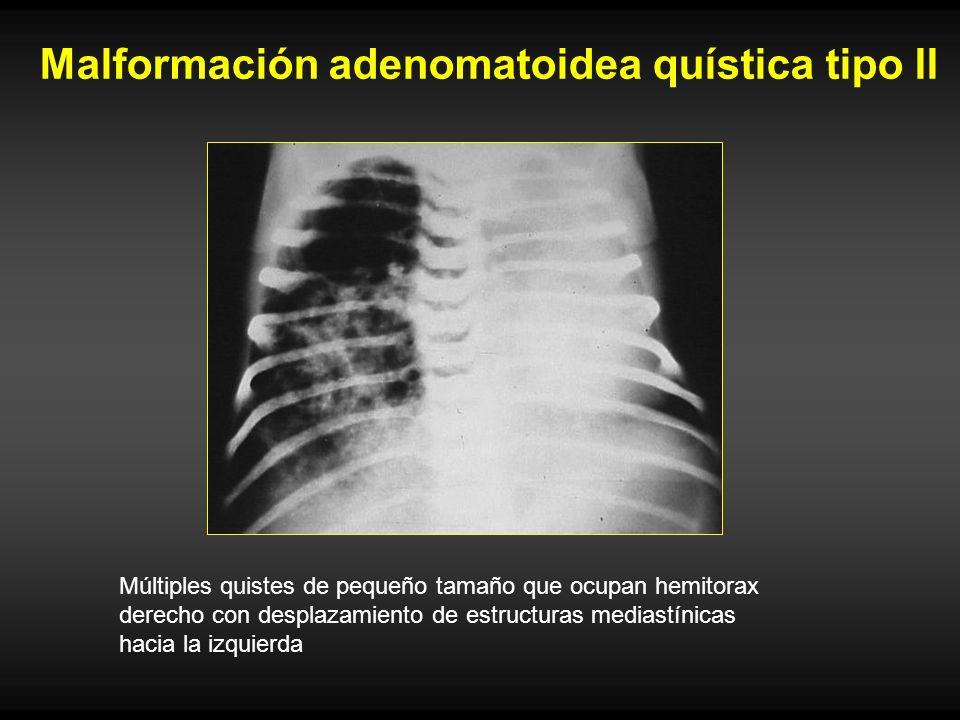 Malformación adenomatoidea quística tipo II
