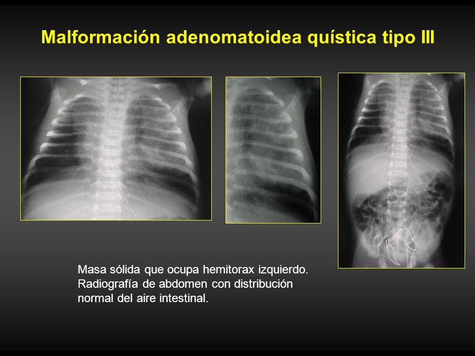Malformación adenomatoidea quística tipo III