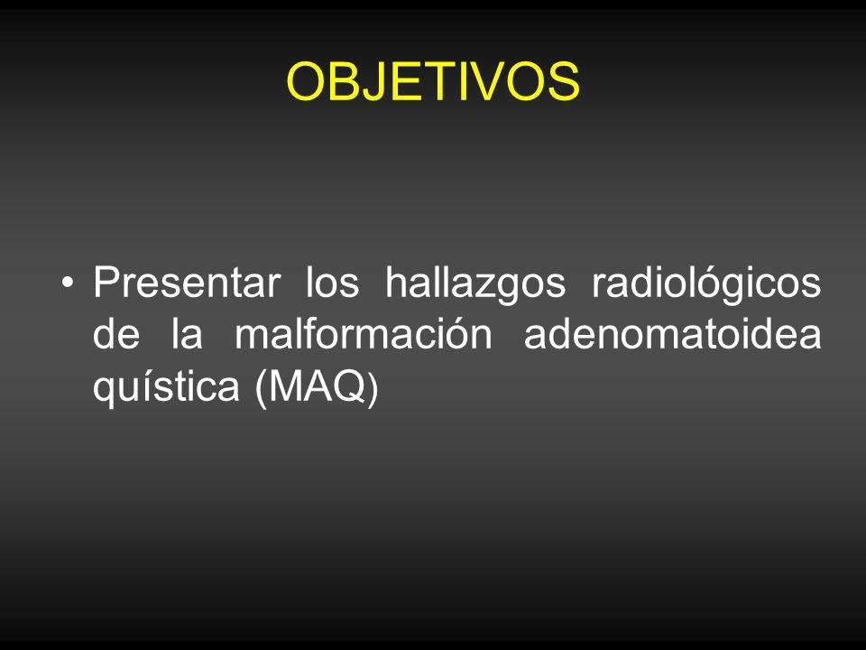 OBJETIVOS Presentar los hallazgos radiológicos de la malformación adenomatoidea quística (MAQ)