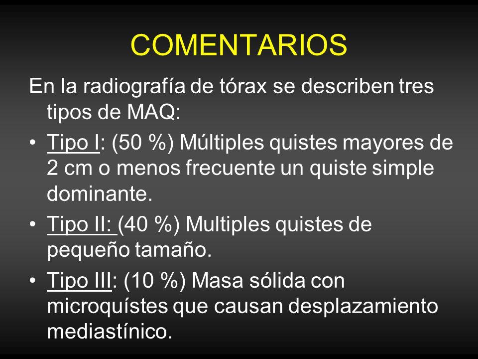 COMENTARIOS En la radiografía de tórax se describen tres tipos de MAQ: