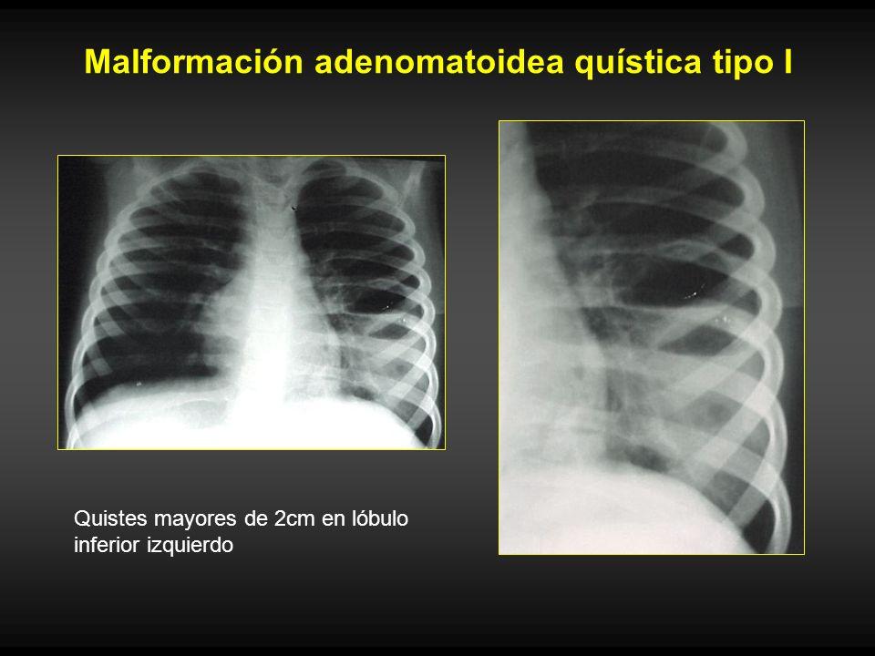Malformación adenomatoidea quística tipo I