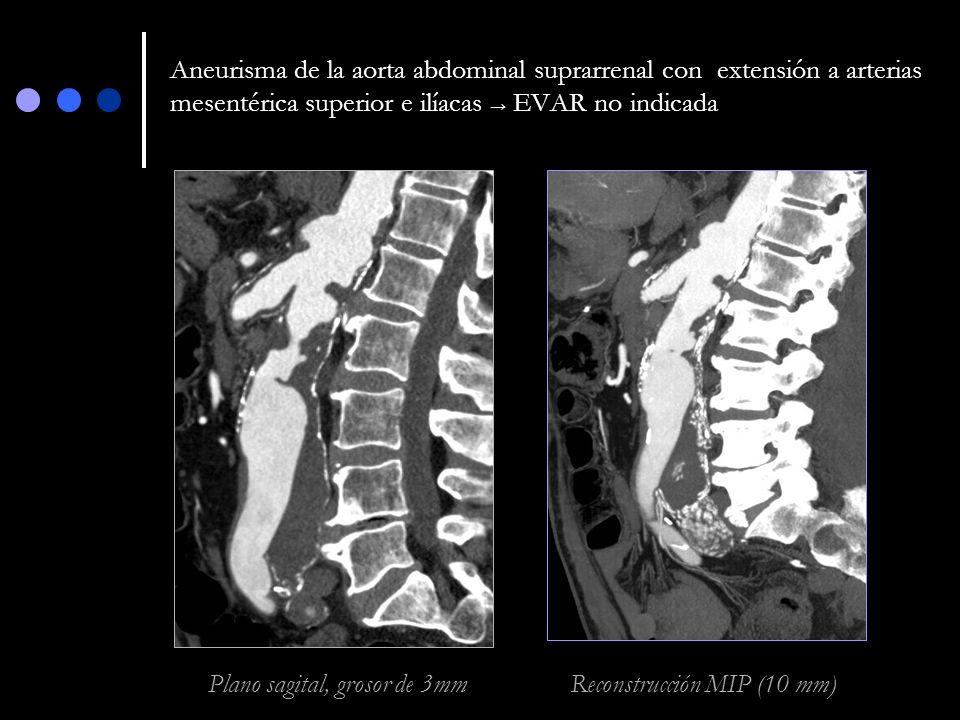 Aneurisma de la aorta abdominal suprarrenal con extensión a arterias mesentérica superior e ilíacas → EVAR no indicada