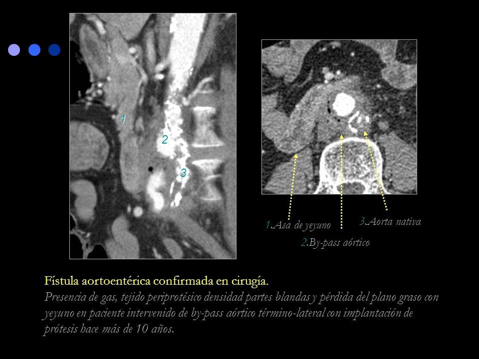 Fístula aortoentérica confirmada en cirugía.
