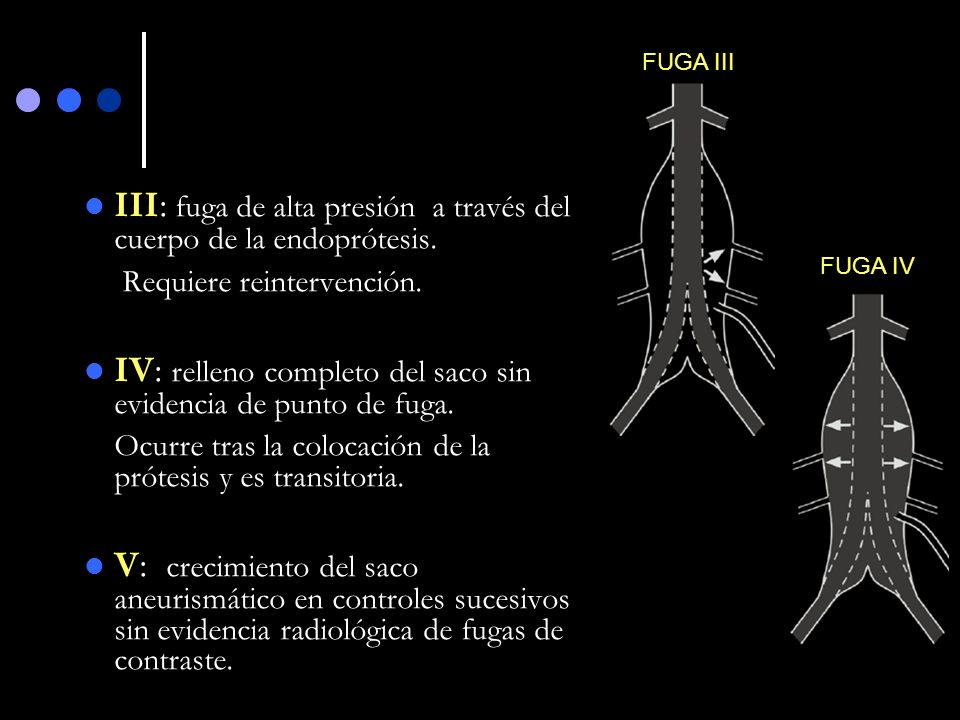 III: fuga de alta presión a través del cuerpo de la endoprótesis.