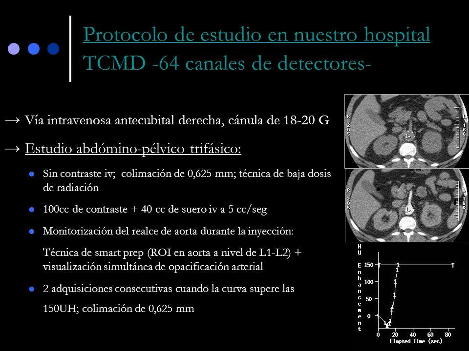 Protocolo de estudio en nuestro hospital TCMD -64 canales de detectores-