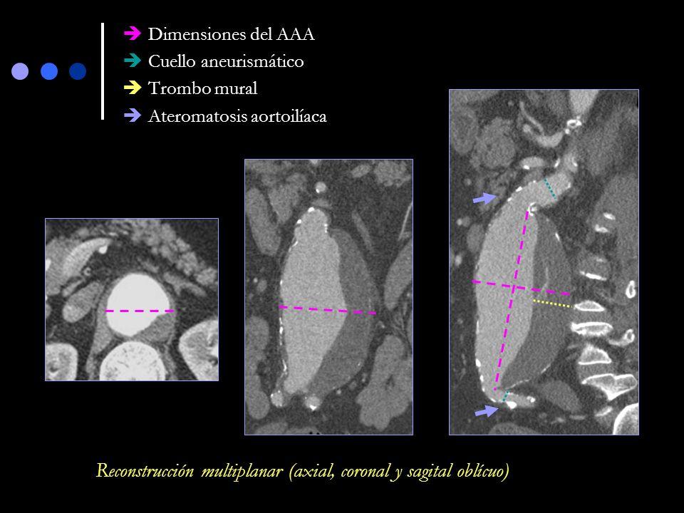 Reconstrucción multiplanar (axial, coronal y sagital oblícuo)
