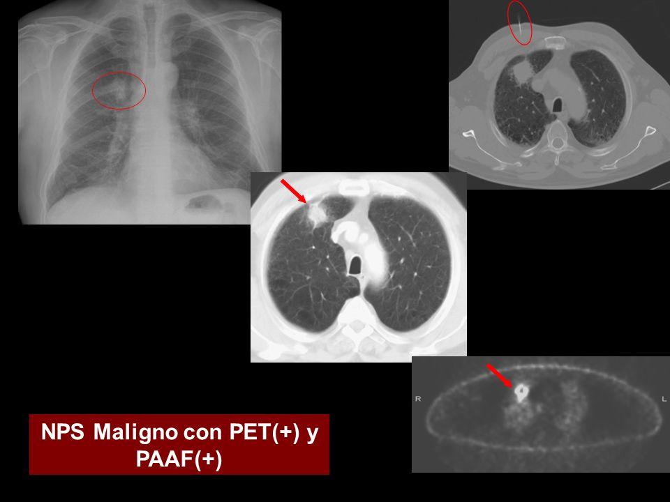 NPS Maligno con PET(+) y PAAF(+)
