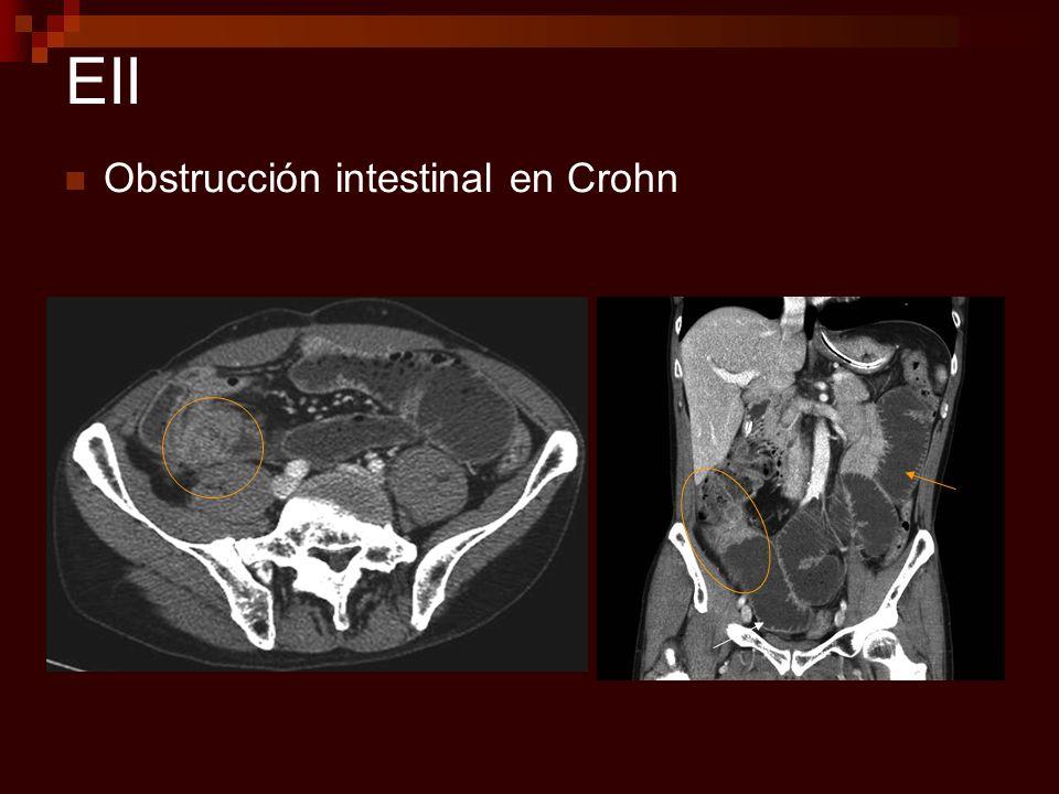 EII Obstrucción intestinal en Crohn