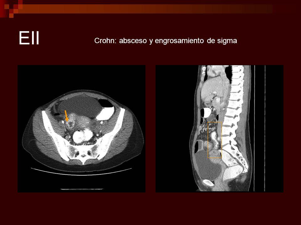 EII Crohn: absceso y engrosamiento de sigma
