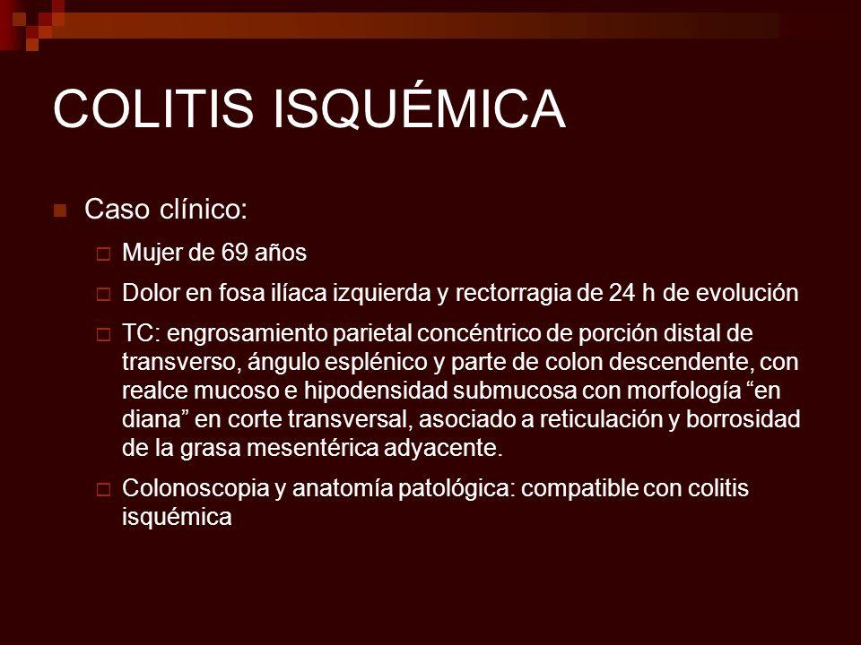 COLITIS ISQUÉMICA Caso clínico: Mujer de 69 años