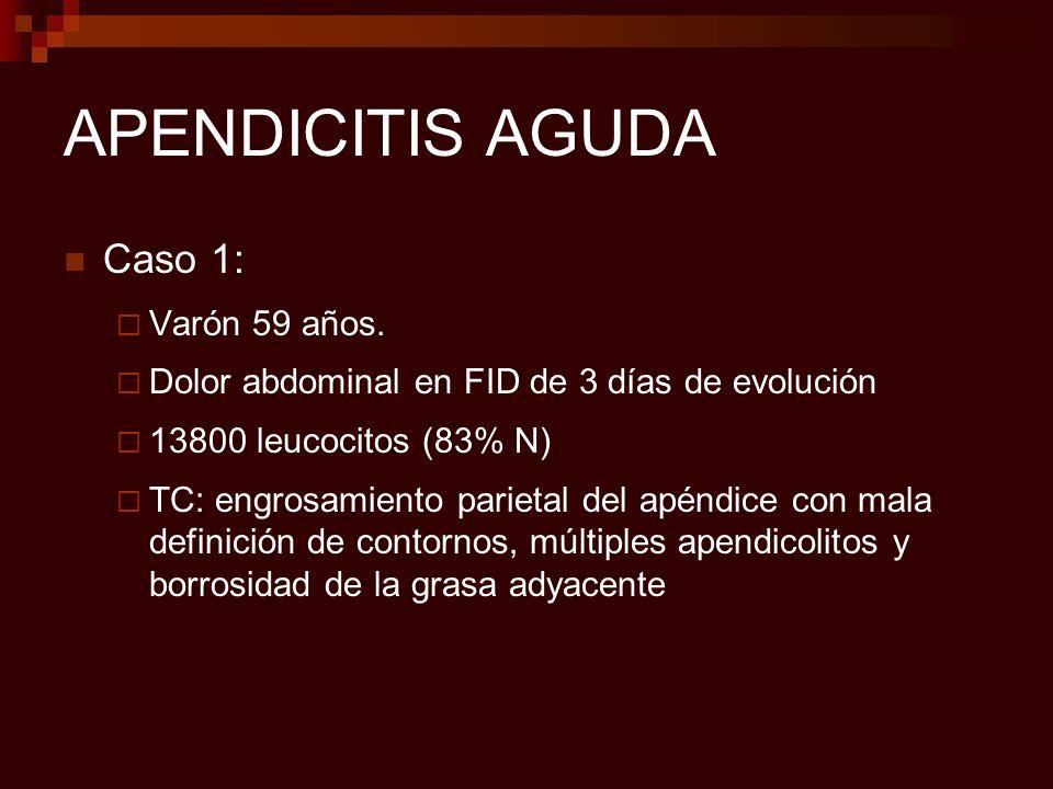APENDICITIS AGUDA Caso 1: Varón 59 años.