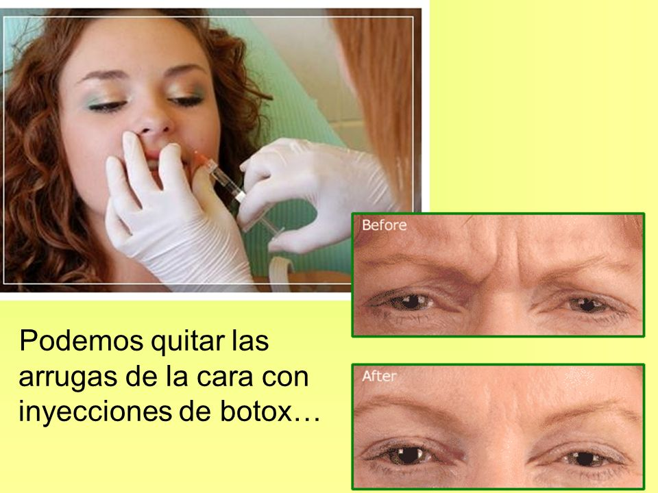 Podemos quitar las arrugas de la cara con inyecciones de botox…