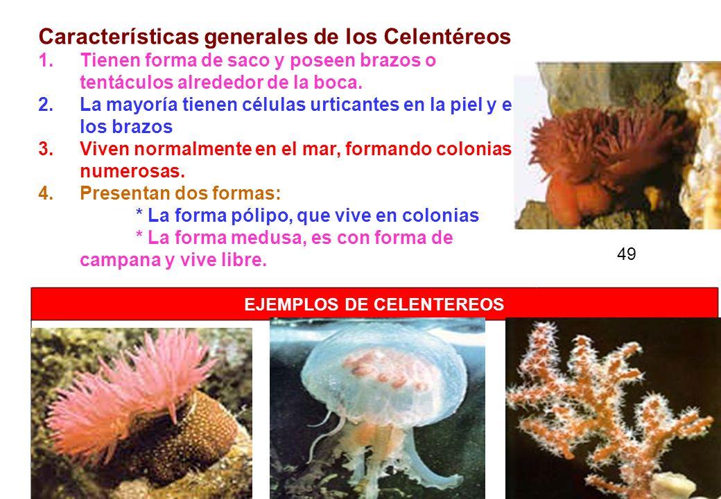 EJEMPLOS DE CELENTEREOS