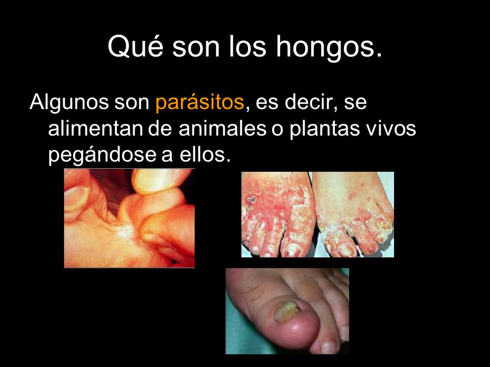 Qué son los hongos.Algunos son parásitos, es decir, se alimentan de animales o plantas vivos pegándose a ellos.