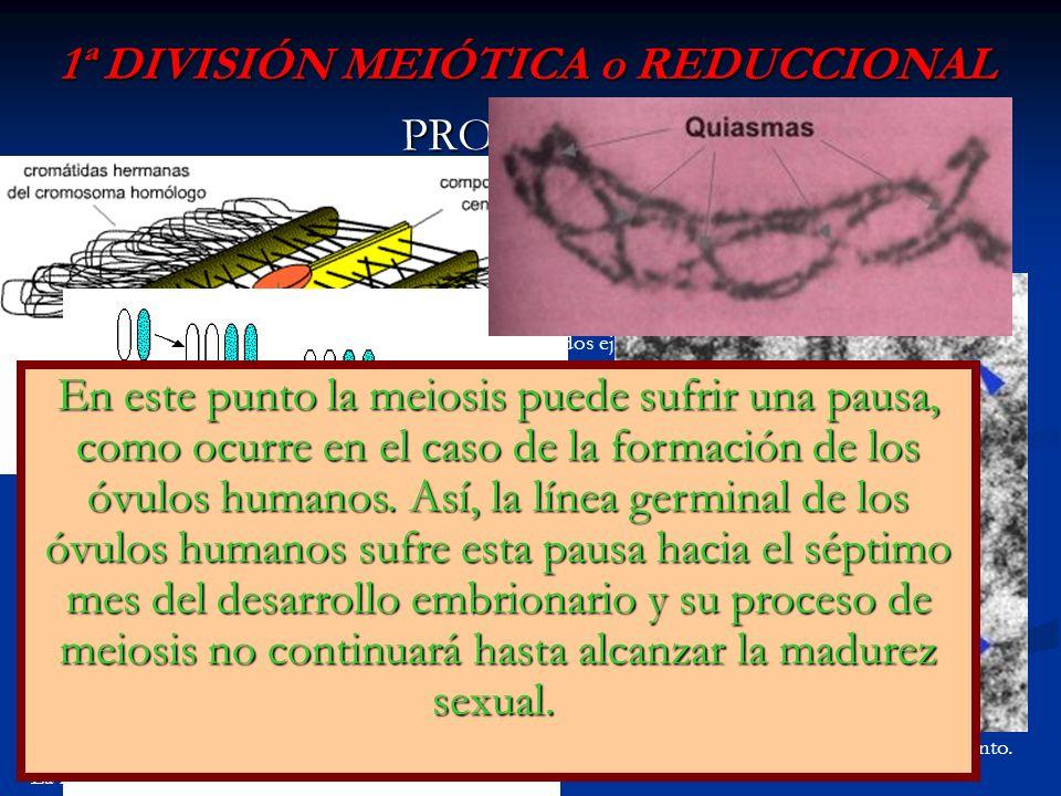 1ª DIVISIÓN MEIÓTICA o REDUCCIONAL