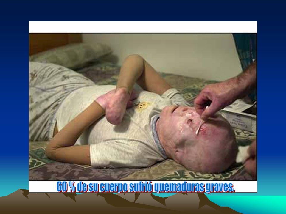 60 % de su cuerpo sufrió quemaduras graves.